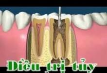 Điều trị nội nha – viêm tủy răng