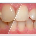 Điều trị răng bị nhiễm flour như thế nào?