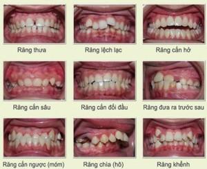 nieng-rang-1
