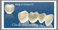 phuc-hinh-rang-su-co-dinh-11