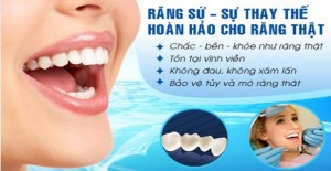 phuc-hinh-rang-su-co-dinh-2
